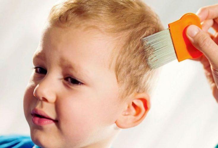 Средства от вшей и гнид для детей и взрослых