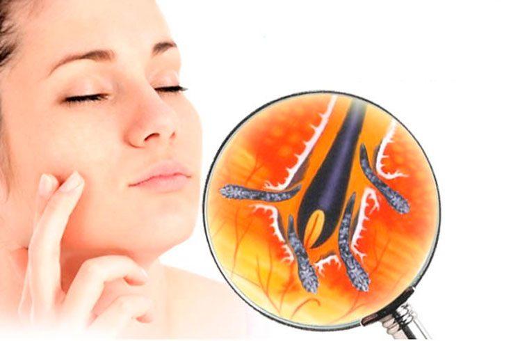 Эффективные методы лечения от клеща демодекса