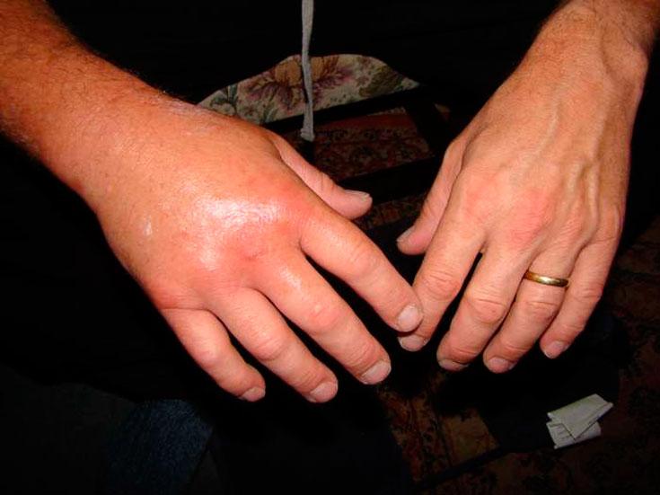 Чем характерен укус шершня