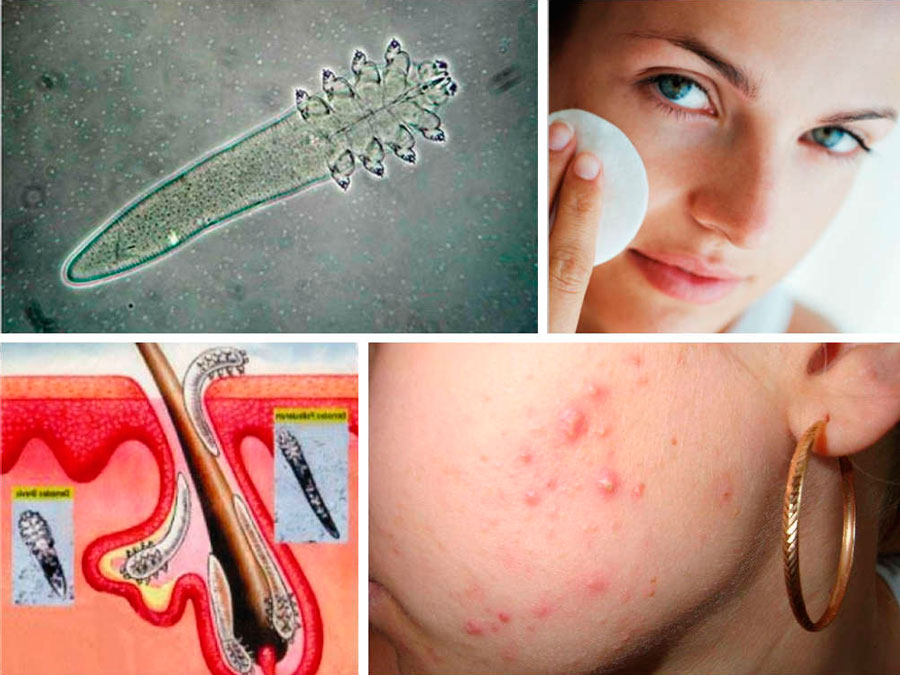 Демодекс, демодекоз на лице * Лечение кожи от клещей на лице