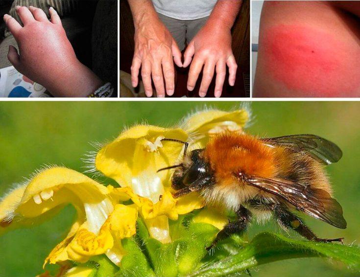 Симптомы и внешний вид укуса